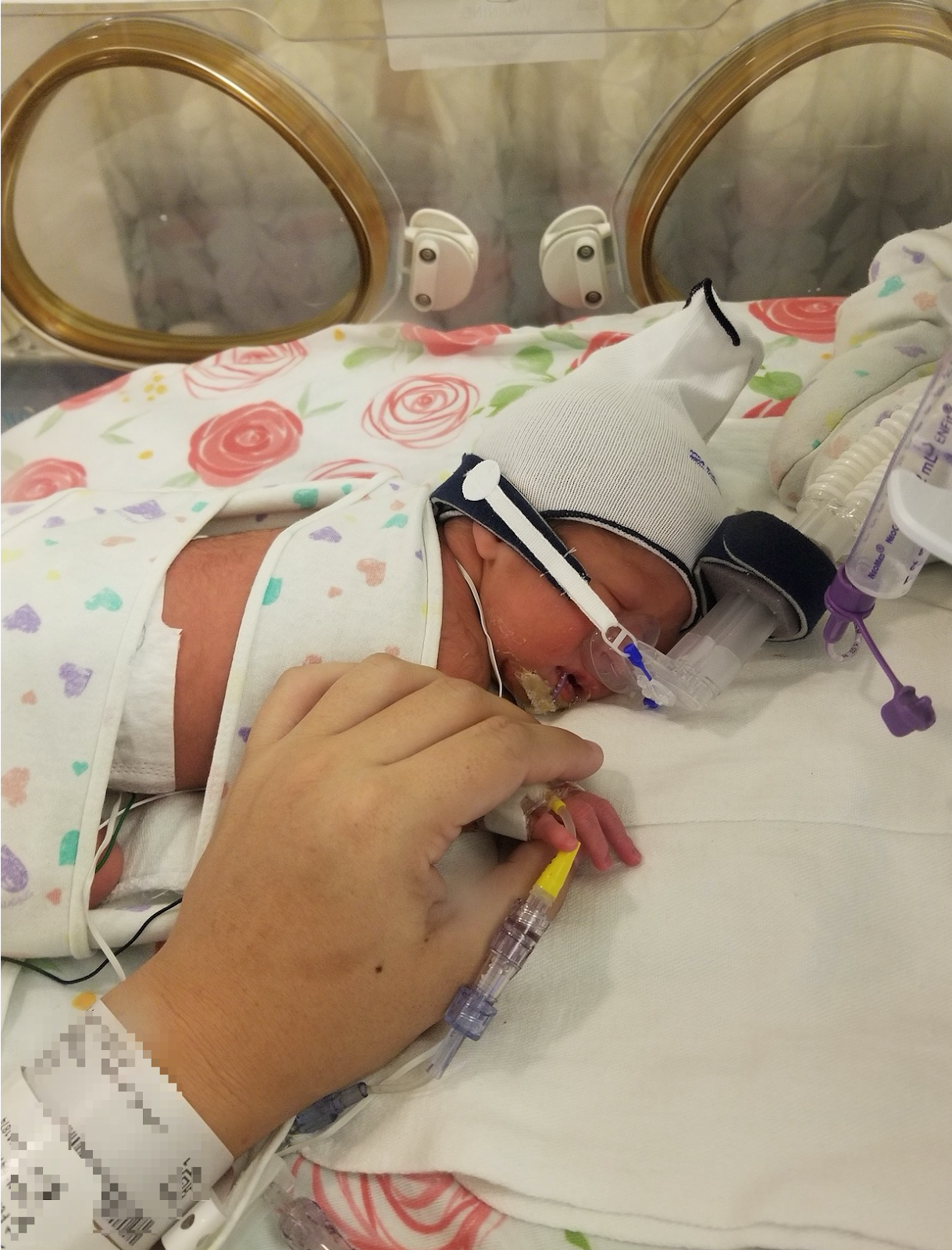 Maile Waite's baby Hailey in the NICU