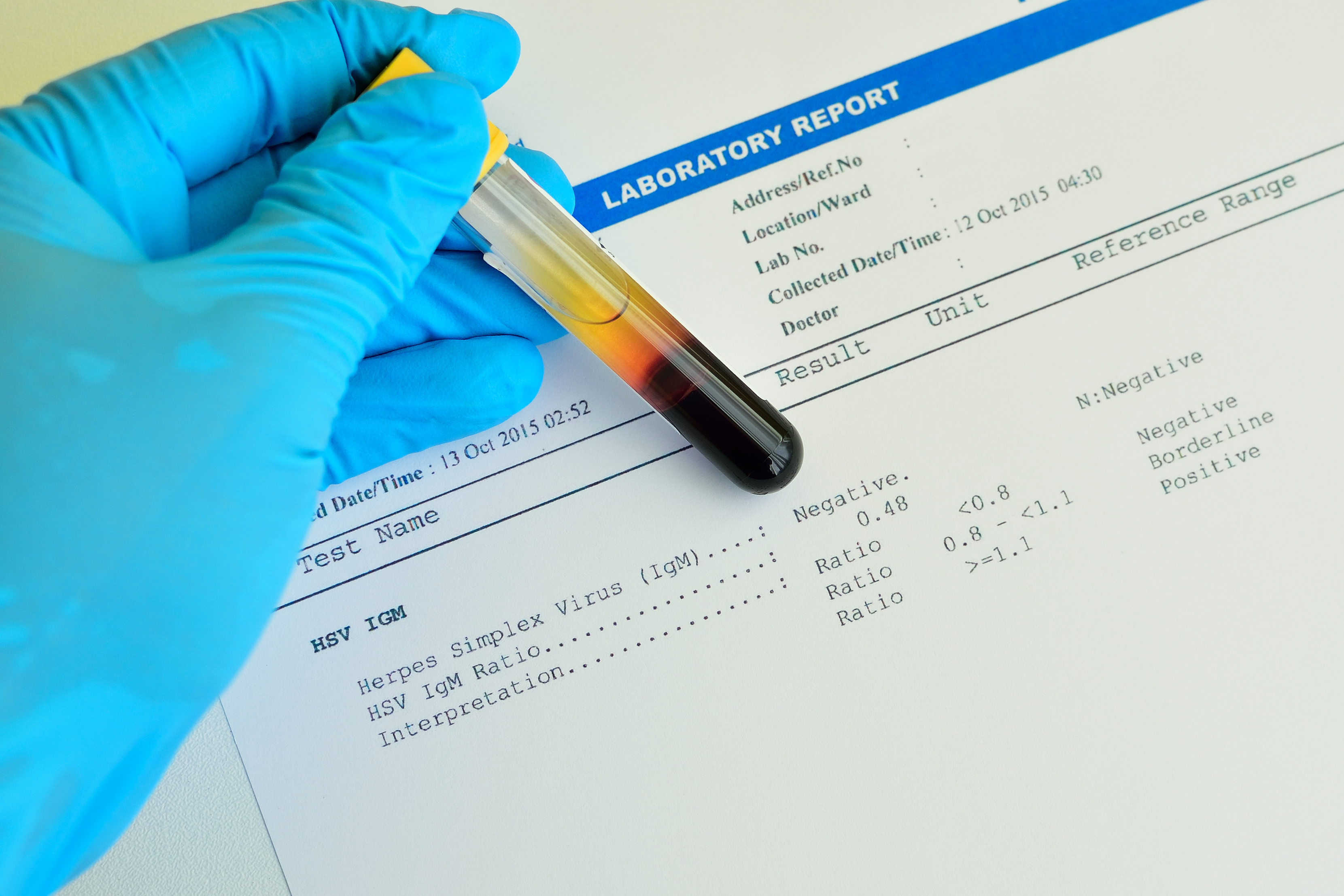 laboratory researcher looking at reports while holding a blood sample