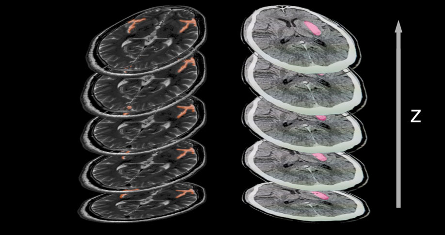 MRI Slices Annotated