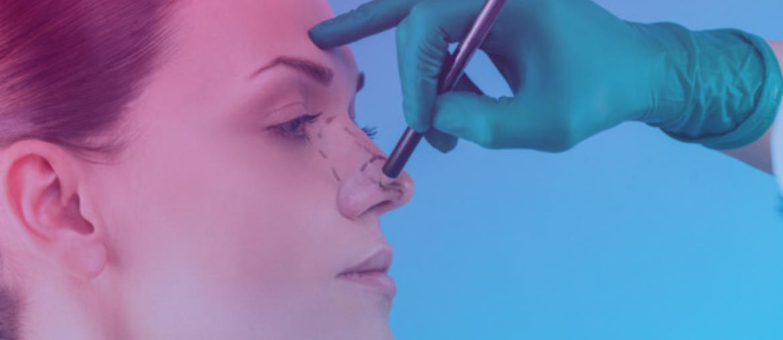 Consórcio estética: dicas para quem deseja fazer cirurgia plástica