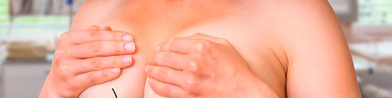 Saiba mais sobre a mastopexia