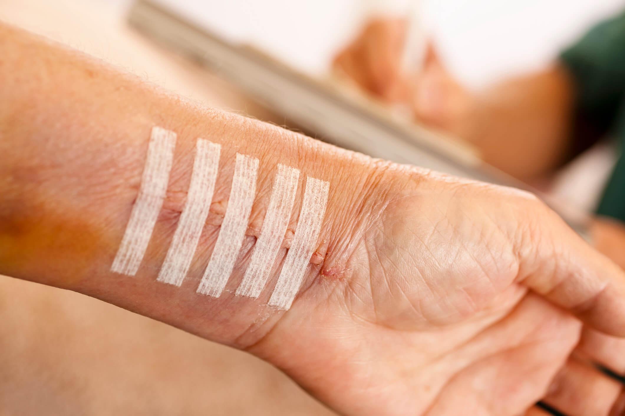 Como funciona a cirurgia de correção de cicatriz? Entenda aqui!