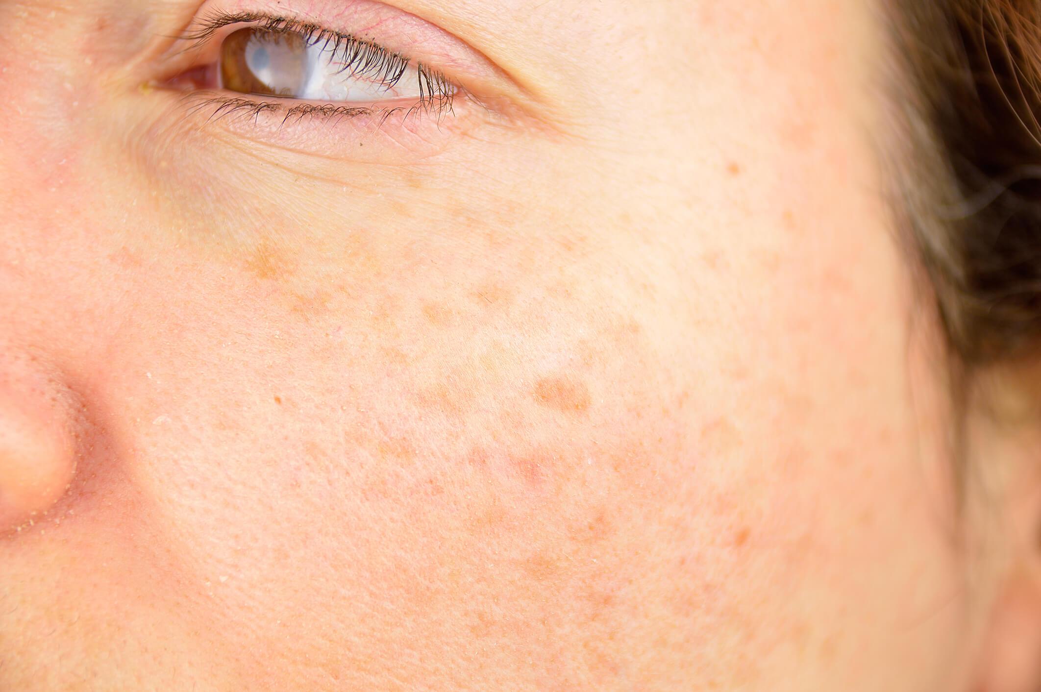 Manchas na pele: quais são as causas e como evitá-las