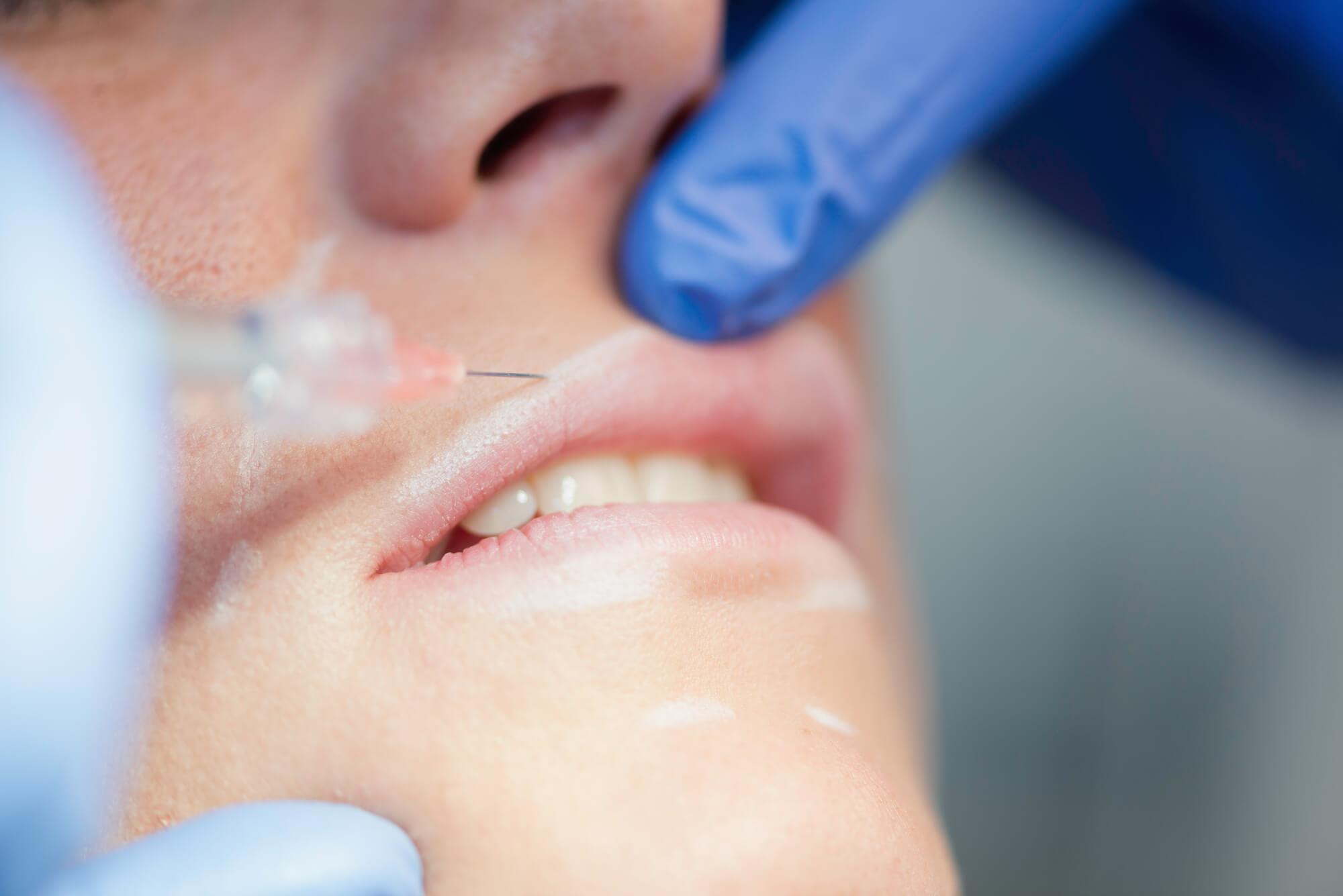 Saiba como é feito o preenchimento labial