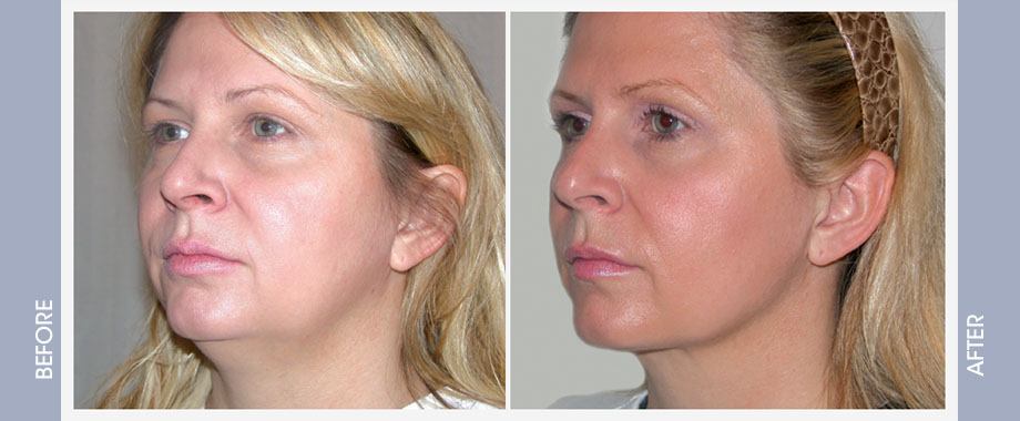 CHIN AUGMENTATION | Cosmetic Surgeon Ontario
