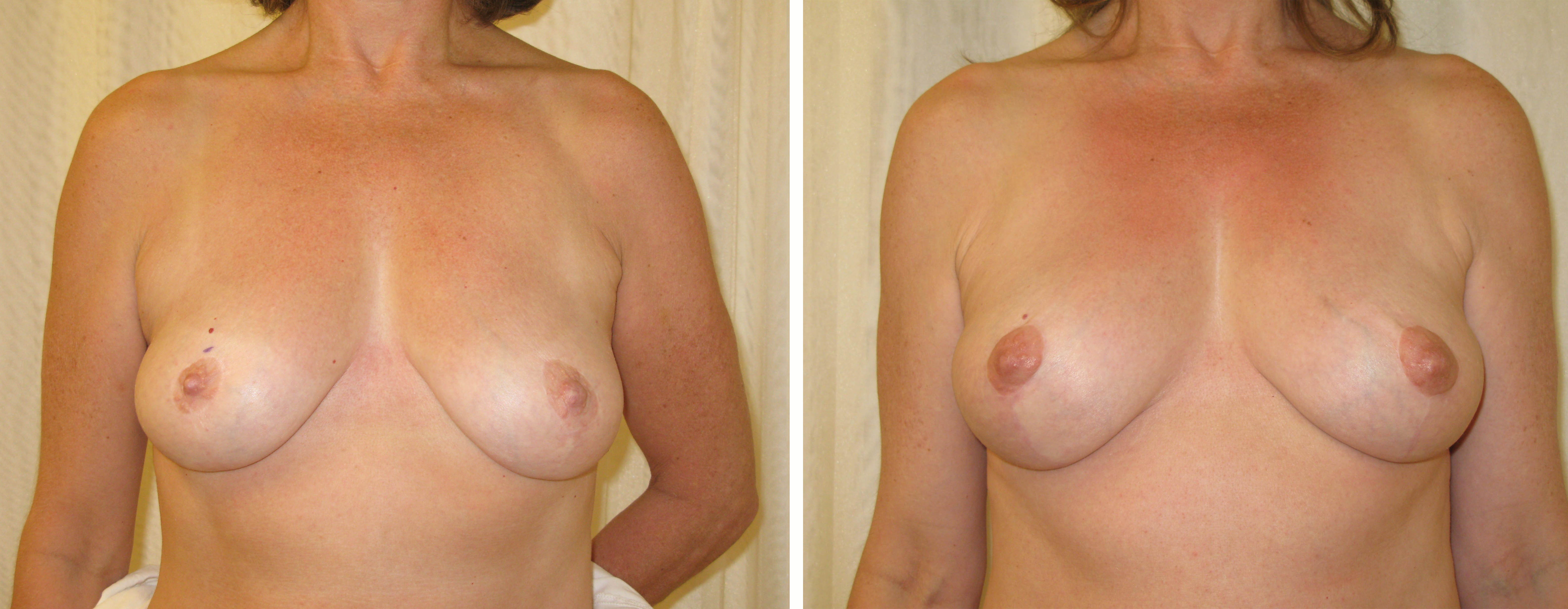 Fat grafting with breast lift