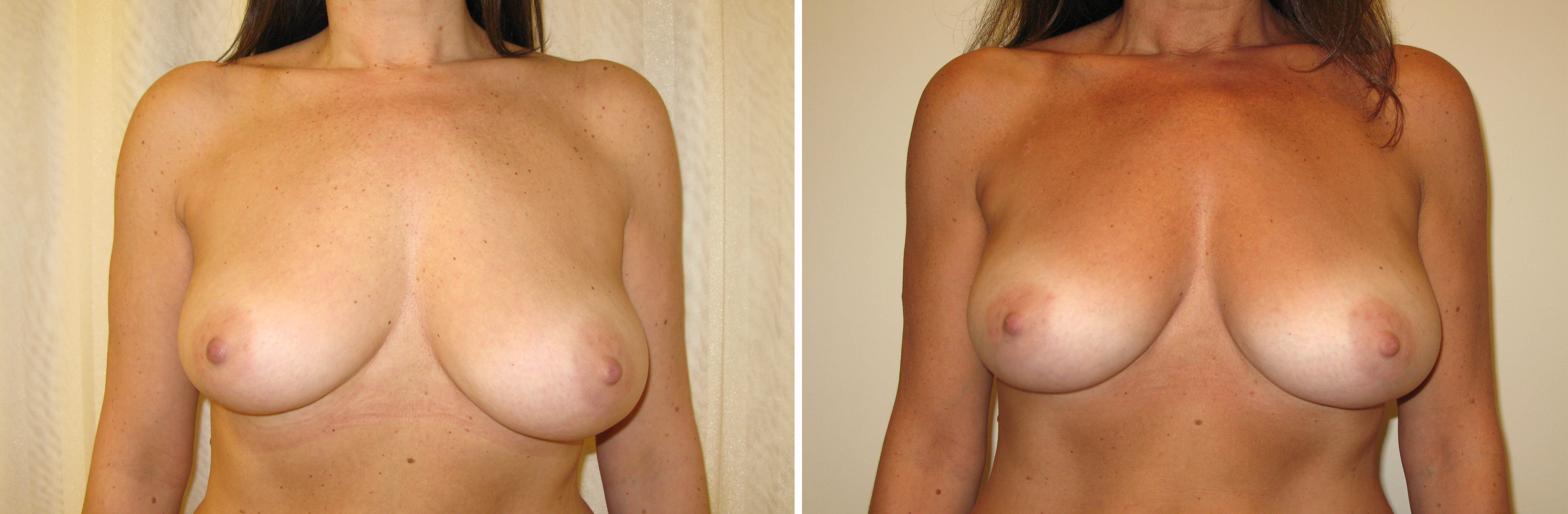 Micro Fat Grafting to breasts
