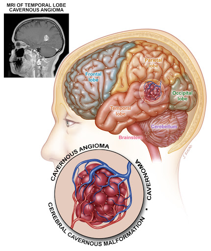 anatomia angioma cavernoso