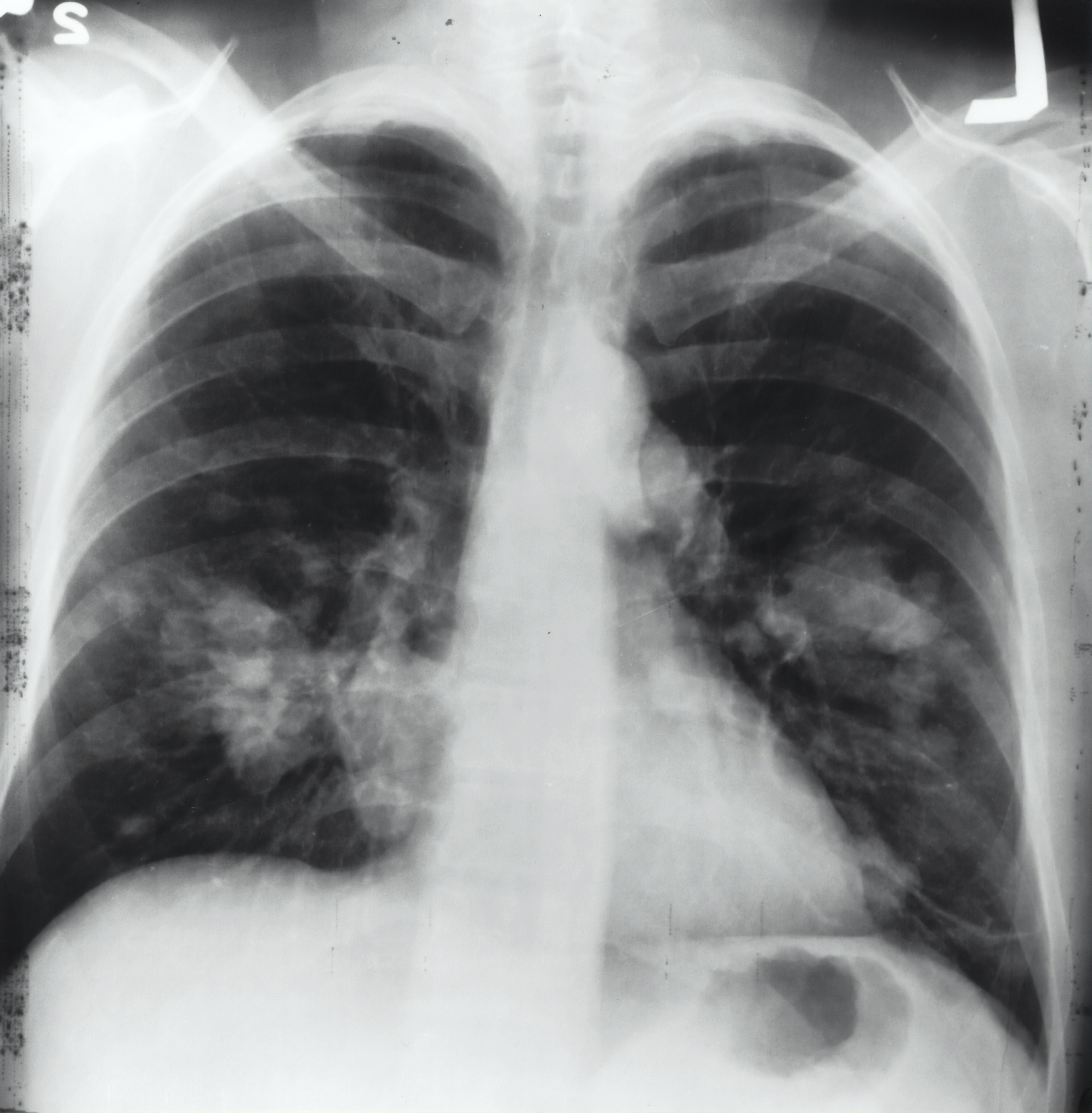 timoma radiografia toracica