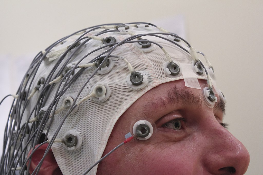 epilessia e elettroencefalogramma