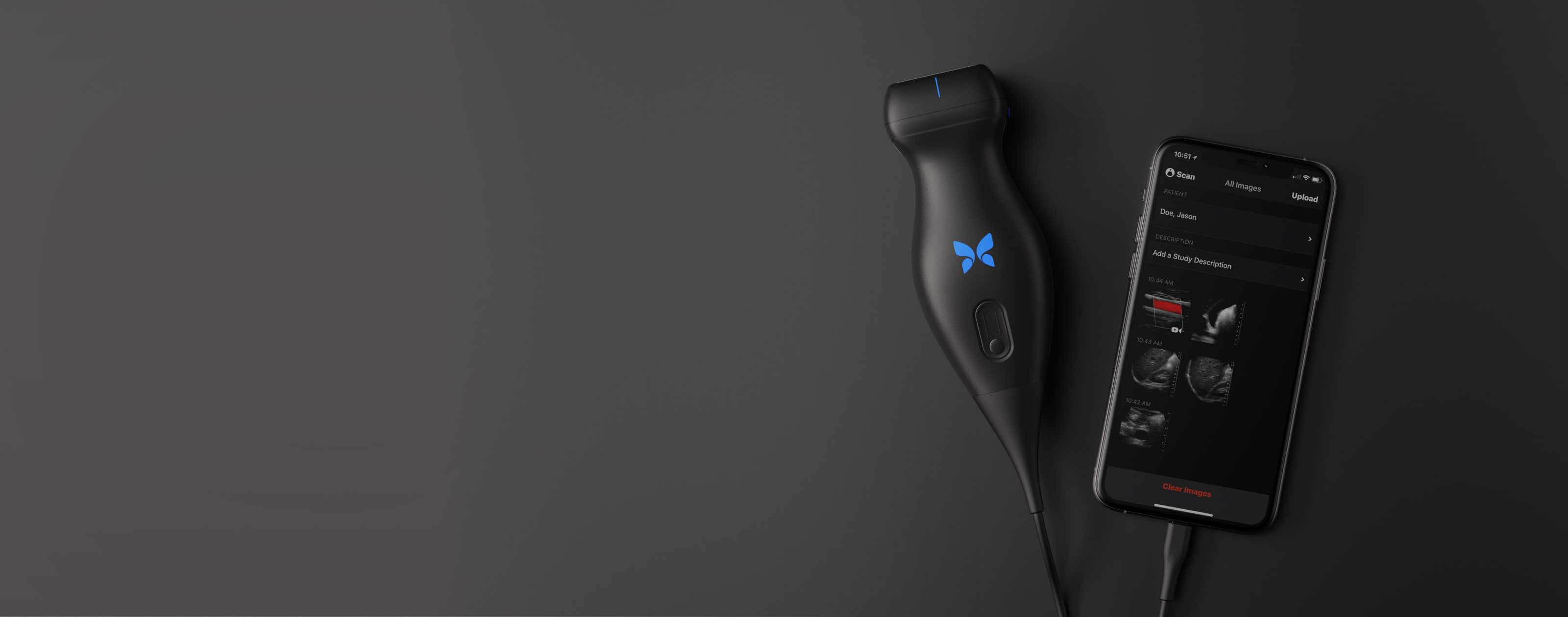 Butterfly iQ on a dark gray background connected to a phone