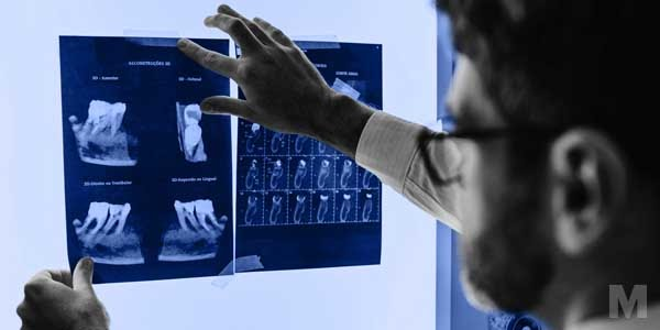 A dentist looking at x-ray images