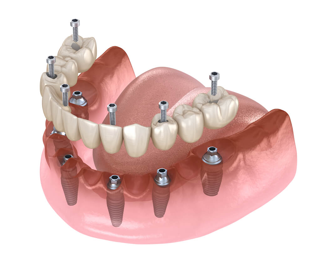 Freedom fixed denture
