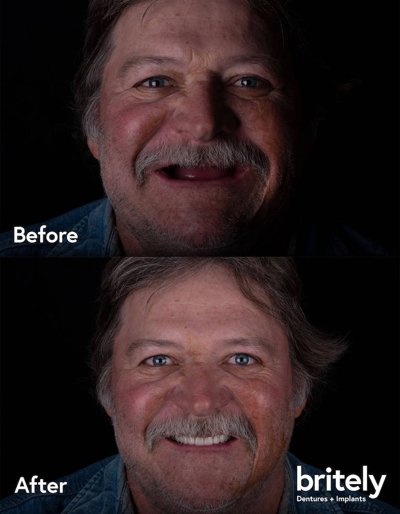 before and after image of a man in his late 50's