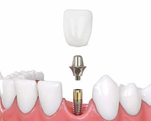 Single tooth implant example