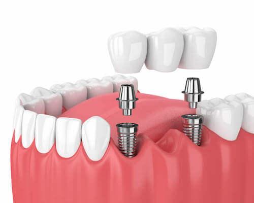 Fixed dental bridge example