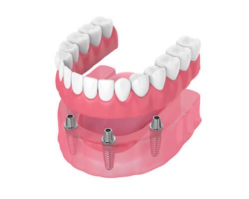 Fixed full arch dental prosthetic