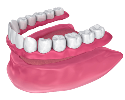 Full arch removable denture
