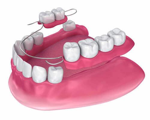 "Partial denture (aka ""flipper"")"