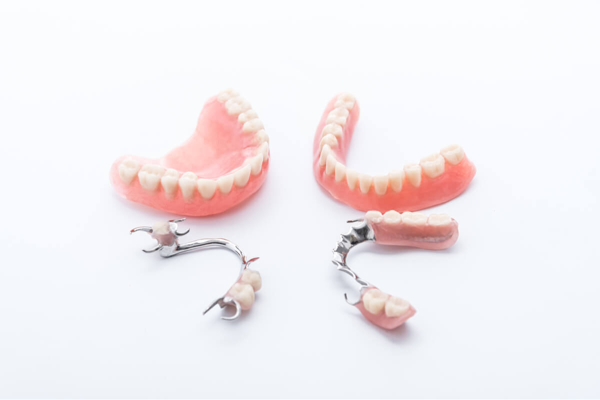 Various dentures including a full denture, partial dentures and metal cast dentures.