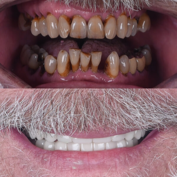 Before and After photo of a man who had a full mouth of dental implants.