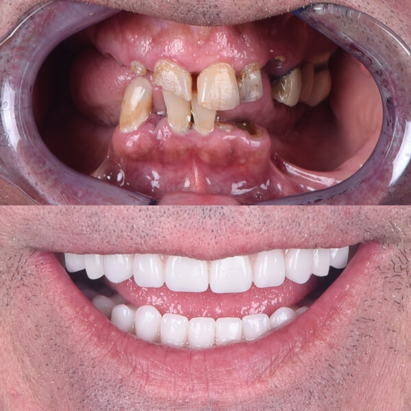 Man before and after full mouth implants.