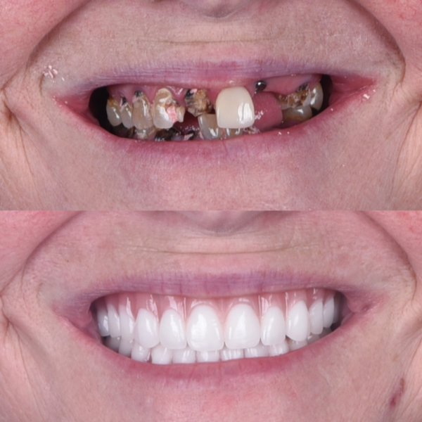Woman before and after image after receiving dentures.