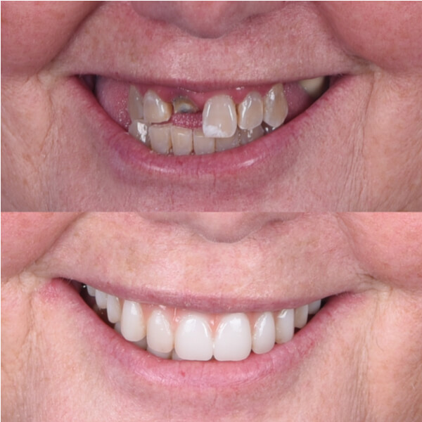 Older woman before and after full mouth implants on upper jaw.