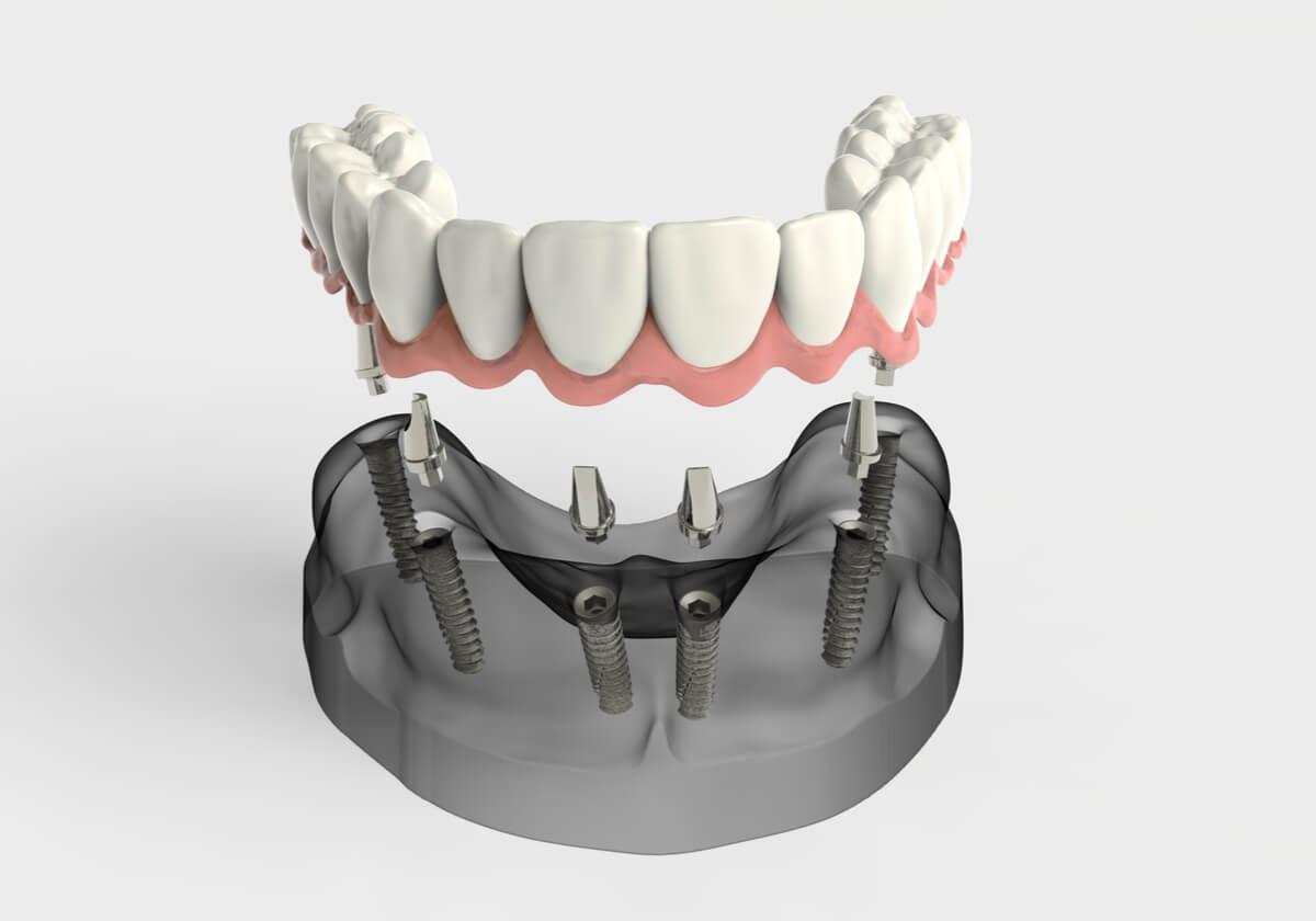 New Dental prosthetic illustration over several dental implants.