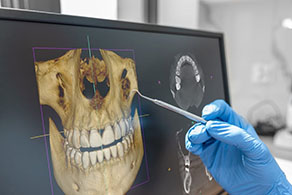 A dentist reviews the x-ray of a patients who is receiving dental implants.