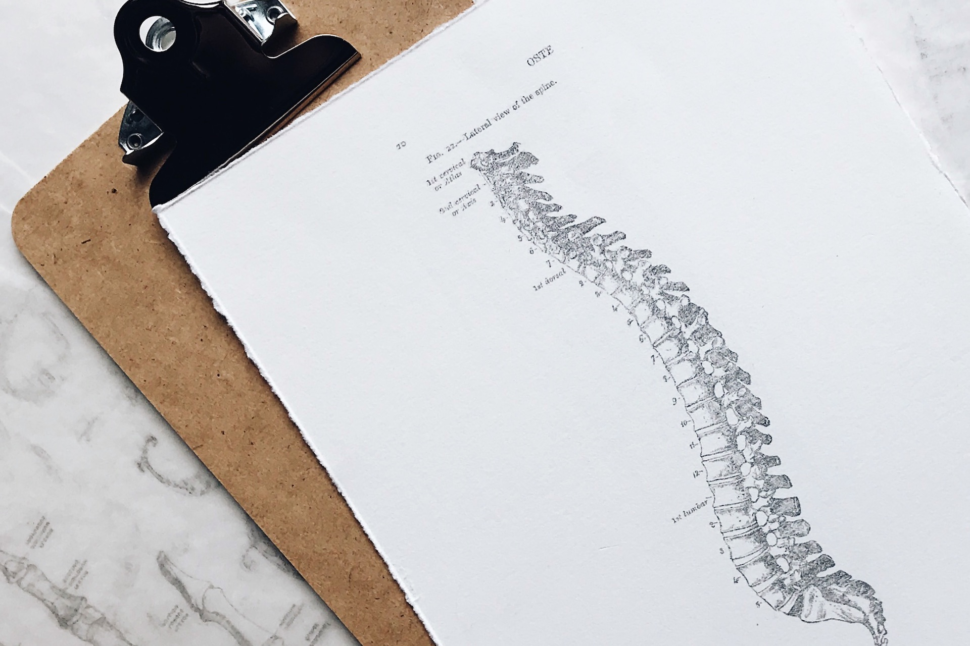 Sketch of a spine with scoliosis