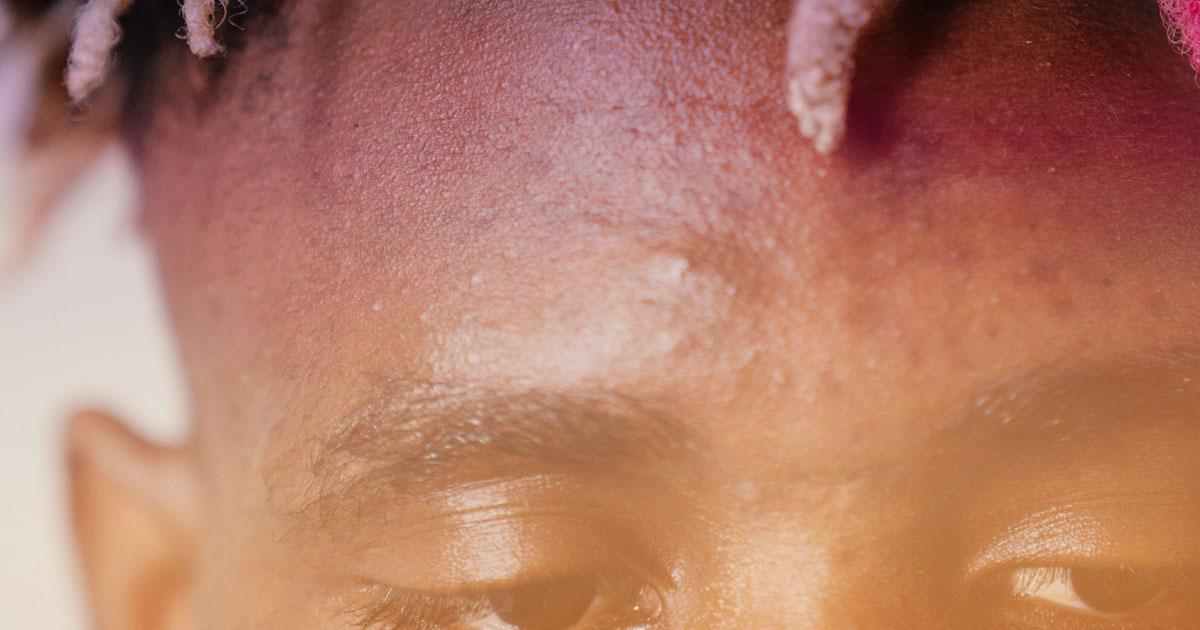 top 5 dermatology concerns acne