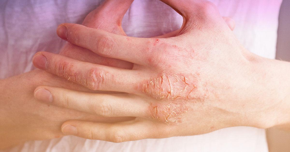 top 5 dermatology concerns eczema