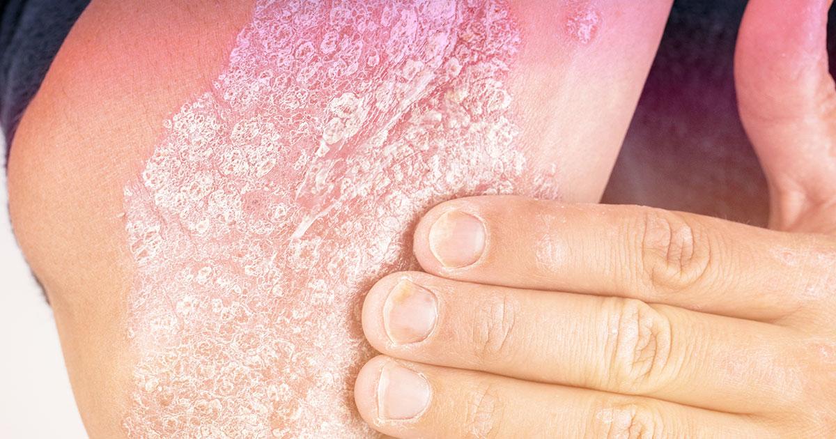 top 5 dermatology concerns psoriasis