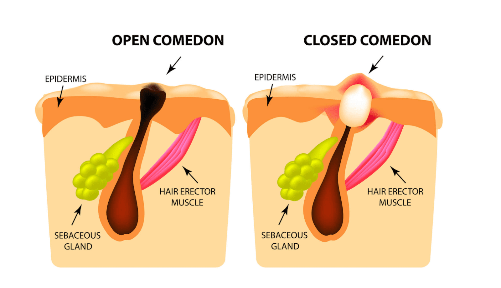 Image showing what an open and closed comedone is