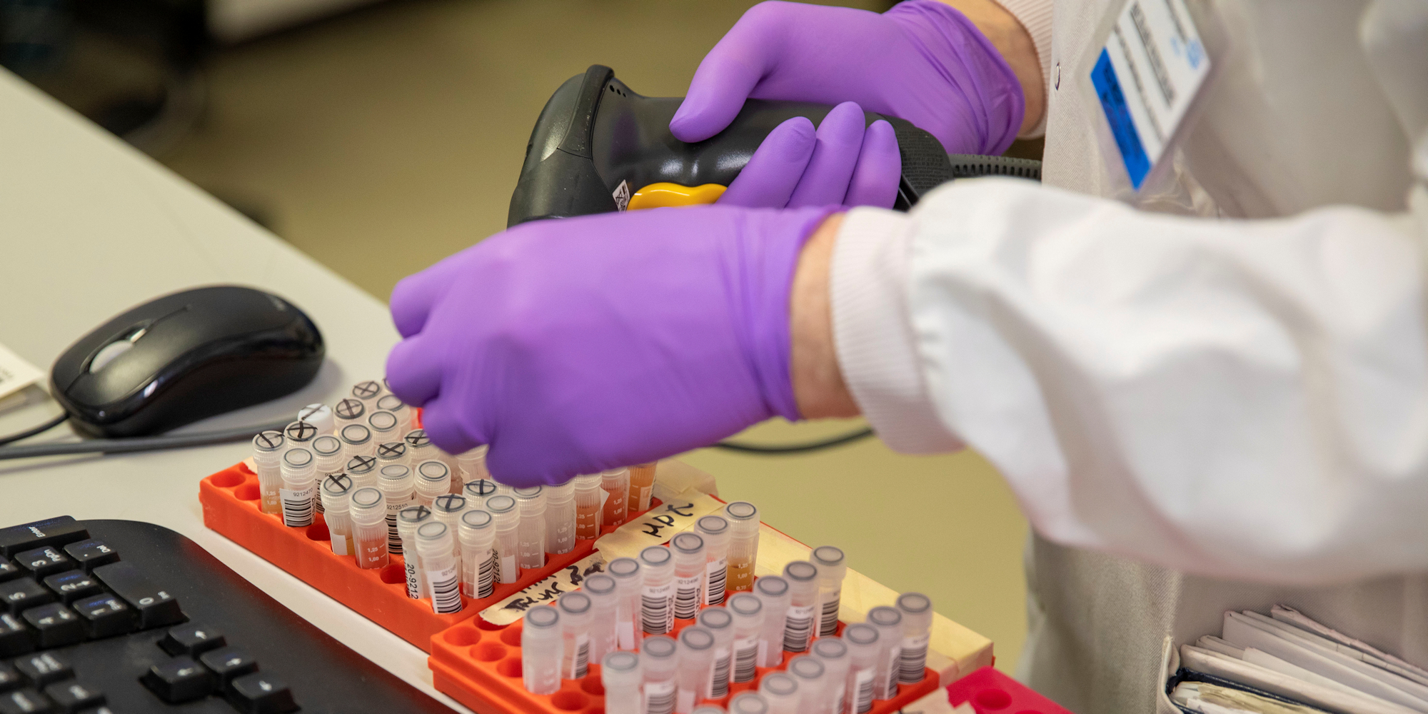 With Labs Overwhelmed, Testing Can Only Show A Fraction Of BC's True COVID-19 Cases