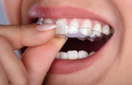 Invisible Aligners At Home