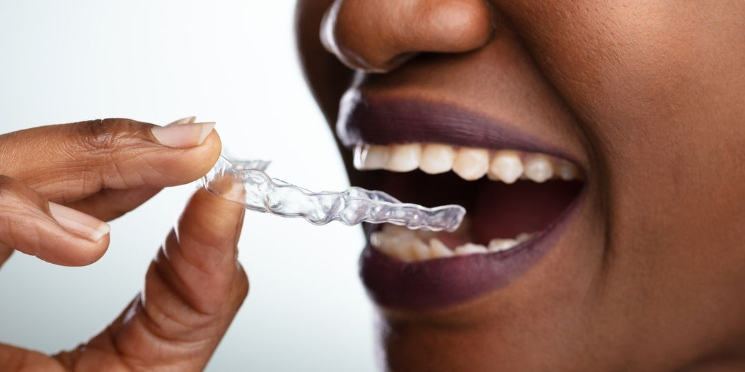 dandy clear aligners