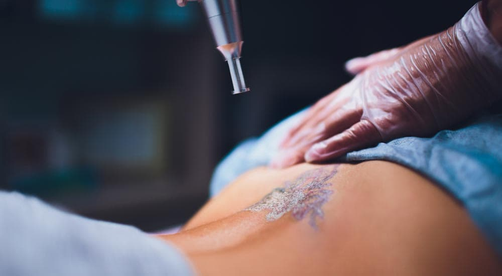 Woman getting lower back tattoo removed