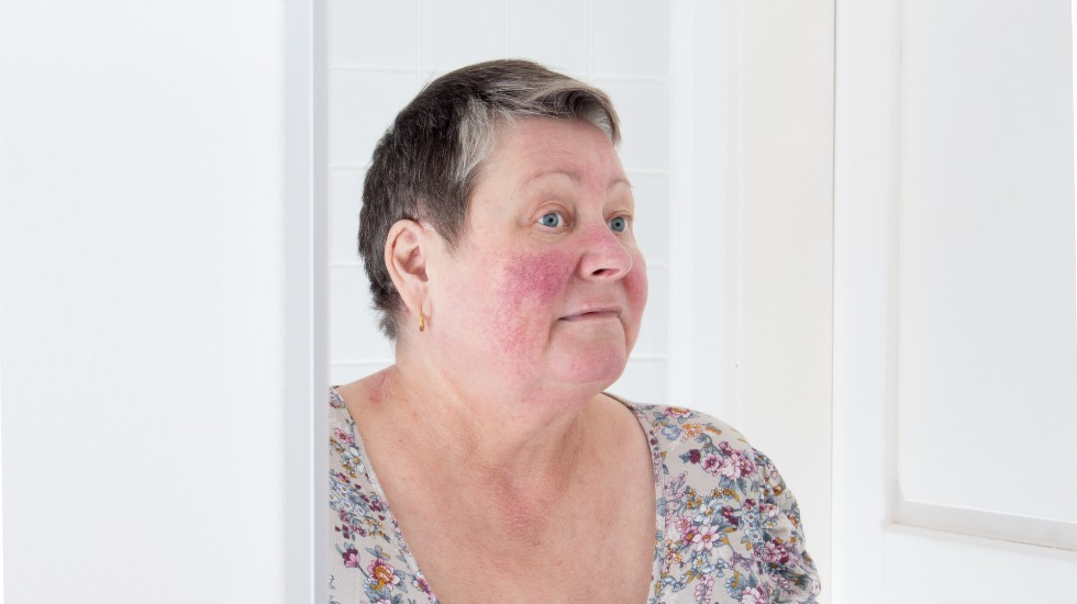 woman with facial redness looking in mirror