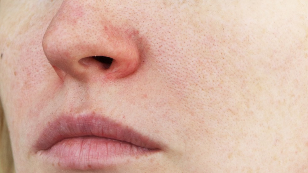 patient with facial redness and veins