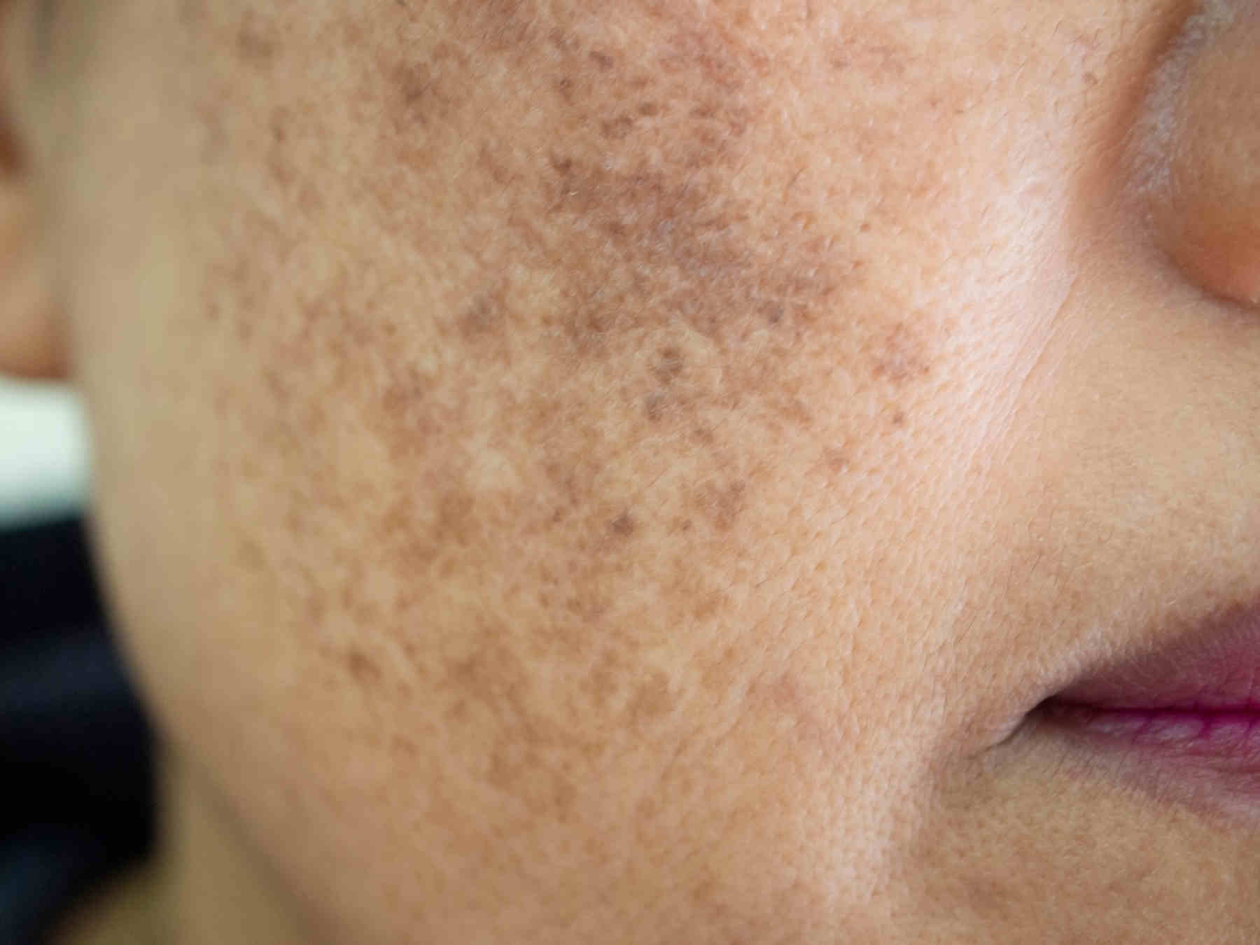 women face with melasma