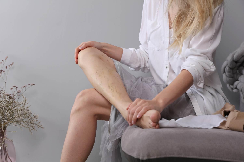 leg vein laser treatment