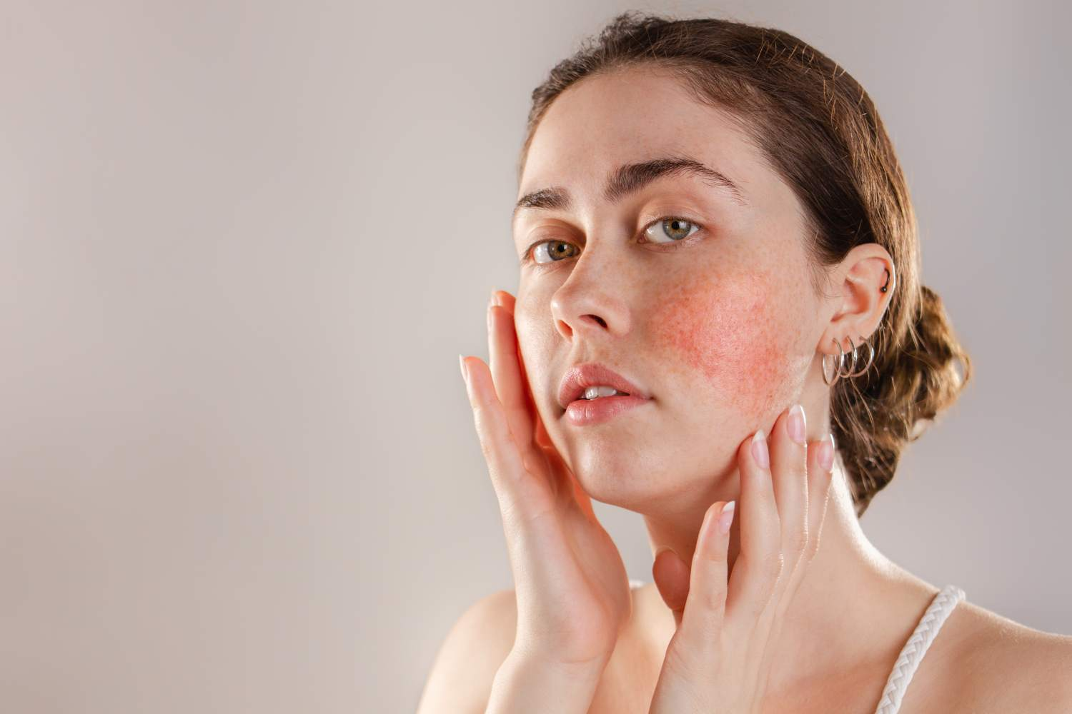 woman face with facial redness