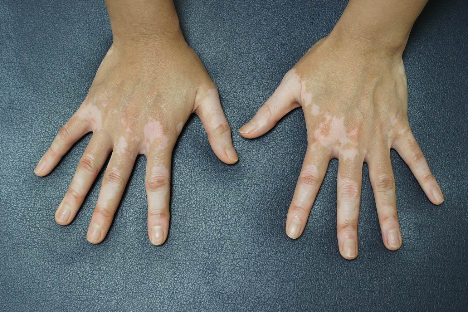 person hands with hyperpigmentation
