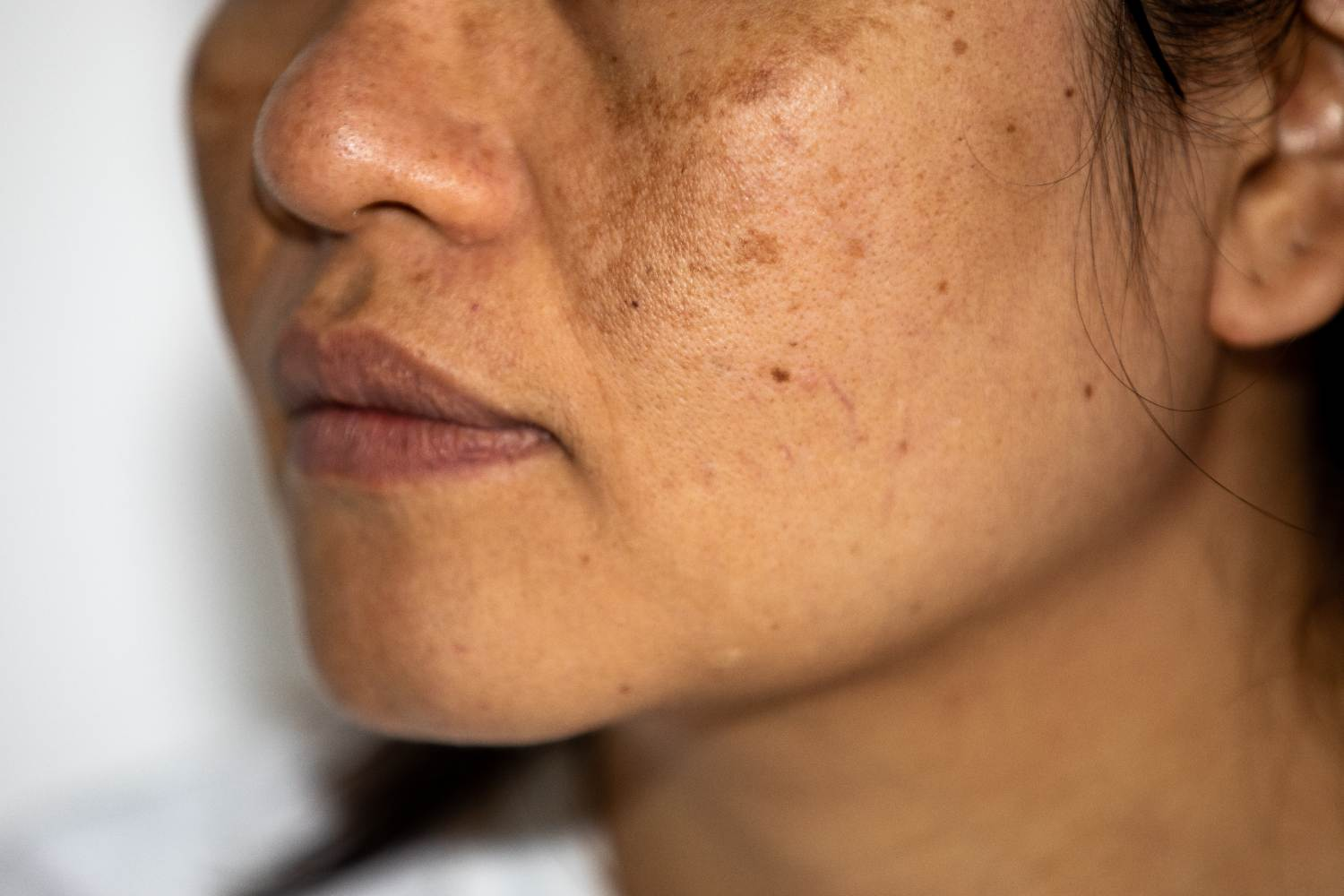 women face with hyperpigmentation
