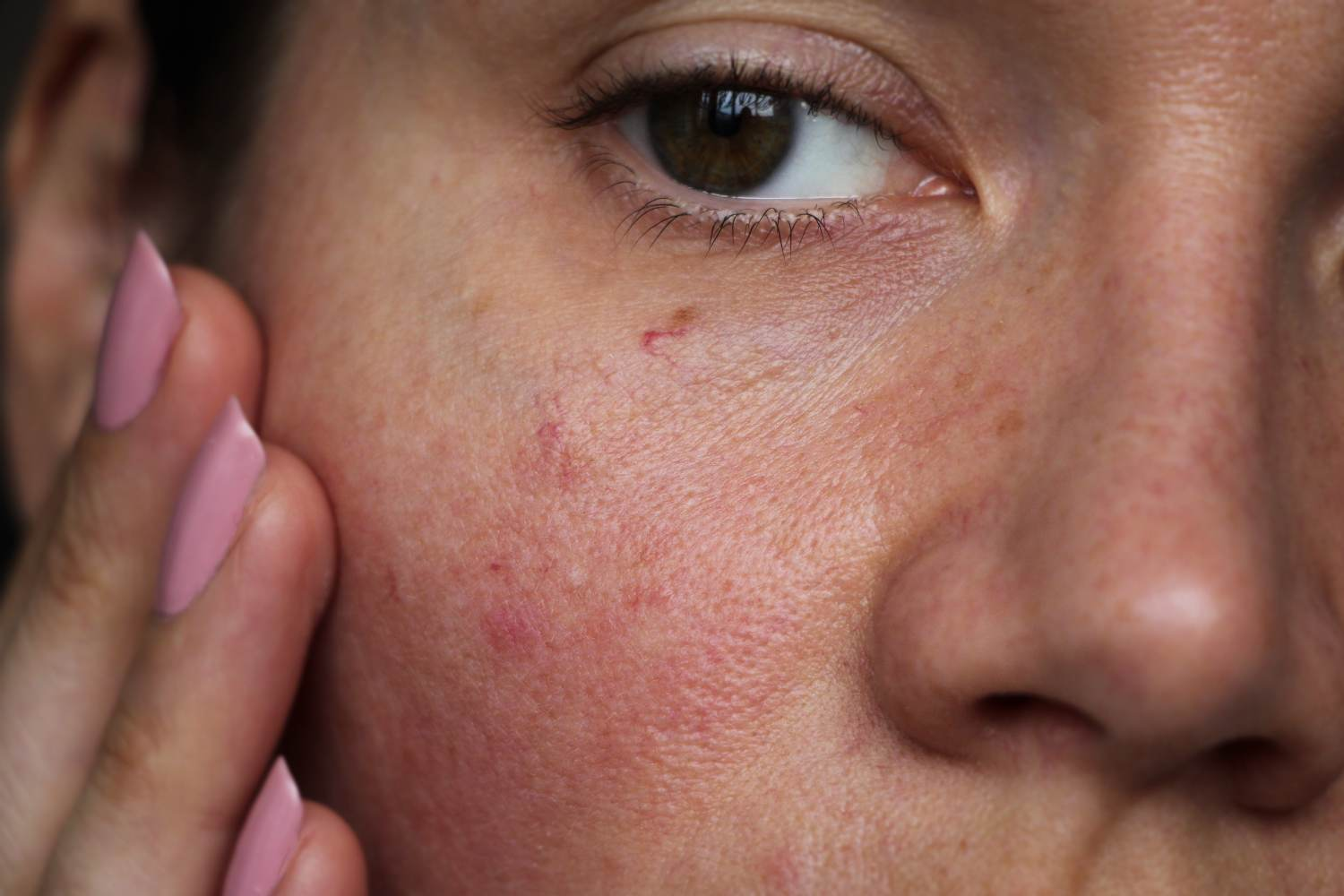 women with facial redness
