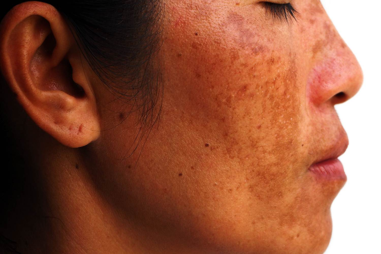 laser treatment for dark skin