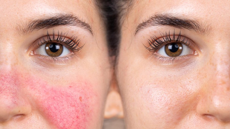 reduce appearance of rosacea