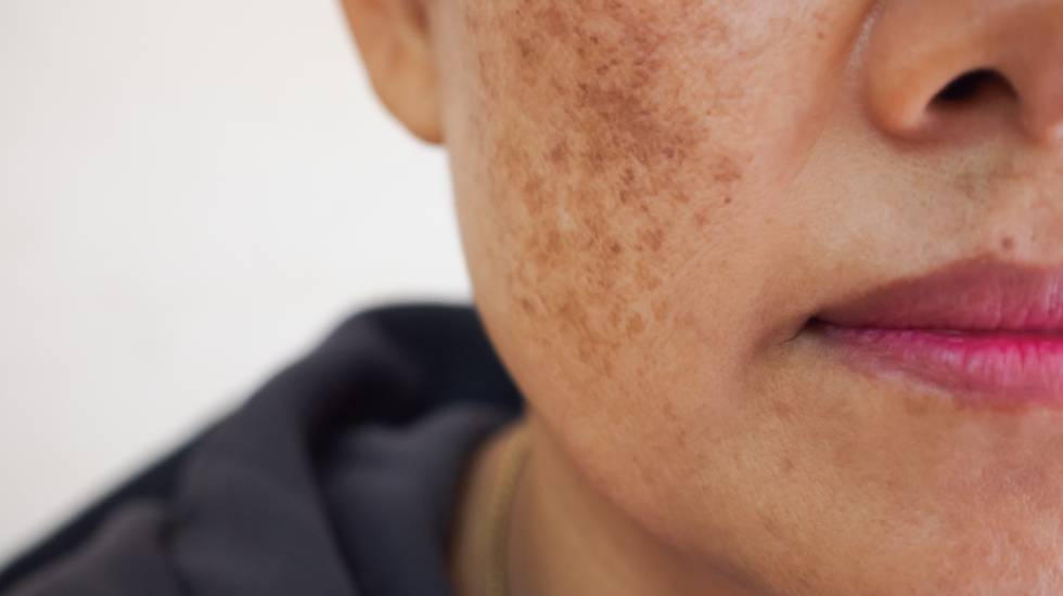 getting rid of freckles